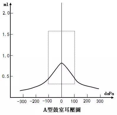 A型耳壓圖